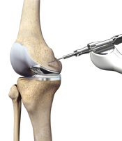 Robotic Joint Replacement Surgery