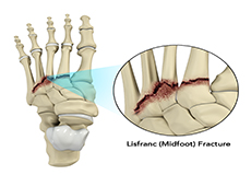 Lisfranc (Midfoot) Fracture